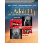 The Adult Hip: 3e HIP ARTHROPLASTY SURGERY
