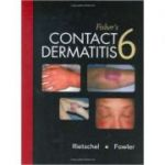 Fisher's Contact Dermatitis