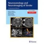 Neurosonology and Neuroimaging of Stroke A Comprehensive Reference