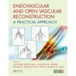 Endovascular and Open Vascular Reconstruction: A Practical Approach