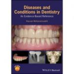 Diseases and Conditions in Dentistry: An Evidence-Based Reference