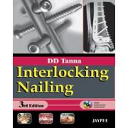 Interlocking Nailing