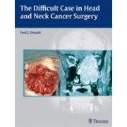 The Difficult Case in Head and Neck Cancer Surgery