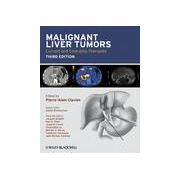 Malignant Liver Tumors: Current and Emerging Therapies
