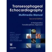 Transesophageal Echocardiography Multimedia Manual: A Perioperative Transdisciplinary Approach, plus DVD