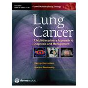 Lung Cancer A Multidisciplinary Approach to Diagnosis and Management