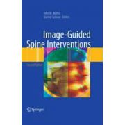 Image-Guided Spine Interventions