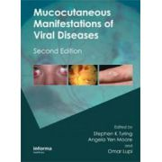 Mucocutaneous Manifestations of Viral Diseases: An Illustrated Guide to Diagnosis and Management