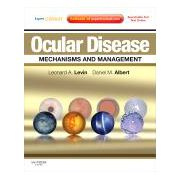 Ocular Disease: Mechanisms and Management Expert Consult - Online and Print