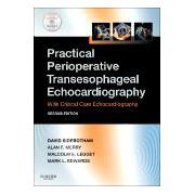 Practical Perioperative Transesophageal Echocardiography, Text with DVD-ROM
