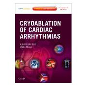 Cryoablation of Cardiac Arrhythmias Expert Consult - Online and Print