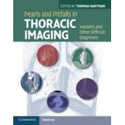 Pearls and Pitfalls in Thoracic Imaging, Variants and Other Difficult Diagnoses