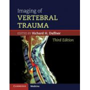 Imaging of Vertebral Trauma