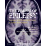 The Causes of Epilepsy Common and Uncommon Causes in Adults and Children