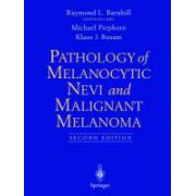Pathology of Melanocytic Nevi and Malignant Melanoma