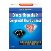Echocardiography in Congenital Heart Disease Expert Consult: Online and Print