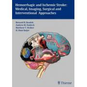 Hemorrhagic and Ischemic Stroke: Medical, Imaging, Surgical and Interventional Approaches