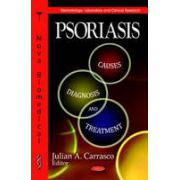 Psoriasis: Causes, Diagnosis & Treatment