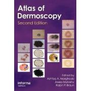 Atlas of Dermoscopy