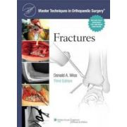 Master Techniques in Orthopaedic Surgery : Fractures