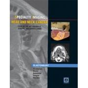Specialty Imaging™: Head and Neck tumors