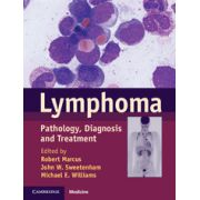 Lymphoma Pathology, Diagnosis and Treatment