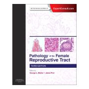 Pathology of the Female Reproductive Tract, EXPERT CONSULT: ONLINE AND PRINT