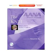 AANA Advanced Arthroscopy: The Knee EXPERT CONSULT: ONLINE, PRINT AND DVD