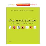 Cartilage Surgery  AN OPERATIVE MANUAL, EXPERT CONSULT: ONLINE AND PRINT