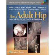 The Adult Hip: Hip Preservation Surgery