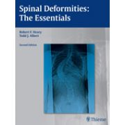 Spinal Deformities The Essentials