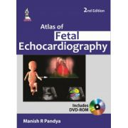 Atlas of Fetal Echocardiography
