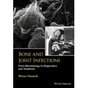 Bone and Joint Infections: From Microbiology to Diagnostics and Treatment