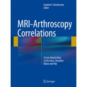 MRI-Arthroscopy Correlations A Case-Based Atlas of the Knee, Shoulder, Elbow and Hip