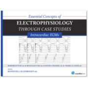 ESSENTIAL CONCEPTS OF ELECTROPHYSIOLOGY THROUGH CASE STUDIES: INTRACARDIAC EGMS