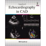 Applied Echocardiography in CAD