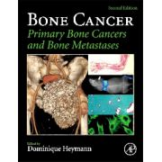 Bone Cancer Primary Bone Cancers and Bone Metastases