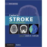 Caplan's Stroke A Clinical Approach