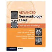 Advanced Neuroradiology Cases Challenge Your Knowledge