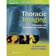 Thoracic Imaging, PULMONARY AND CARDIOVASCULAR RADIOLOGY