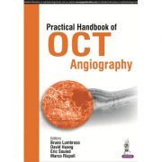 Practical Handbook of OCT Angiography