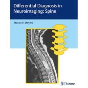 Differential Diagnosis in Neuroimaging Spine