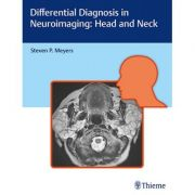 Differential Diagnosis in Neuroimaging Head and Neck