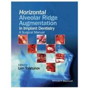 Horizontal Alveolar Ridge Augmentation in Implant Dentistry: A Surgical Manual