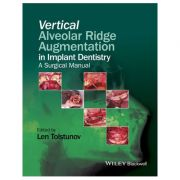 Vertical Alveolar Ridge Augmentation in Implant Dentistry: A Surgical Manual