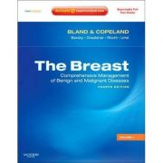 The Breast, 2-Volume Set, Expert Consult Online and Print Comprehensive Management of Benign and Malignant Diseases