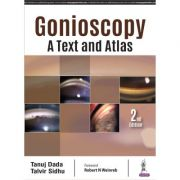 Gonioscopy: A Text and Atlas