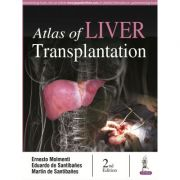 Atlas of Liver Transplantation