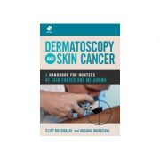 Dermatoscopy and Skin Cancer A handbook for hunters of skin cancer and melanoma