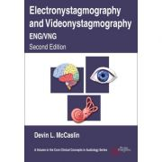 Electronystagmography and Videonystagmography (ENG/VNG)